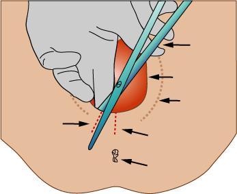 Schéma explicatif de l'épisiotomie